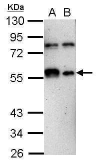KLF12 Antibody in Western Blot (WB)