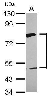 XPD Antibody in Western Blot (WB)