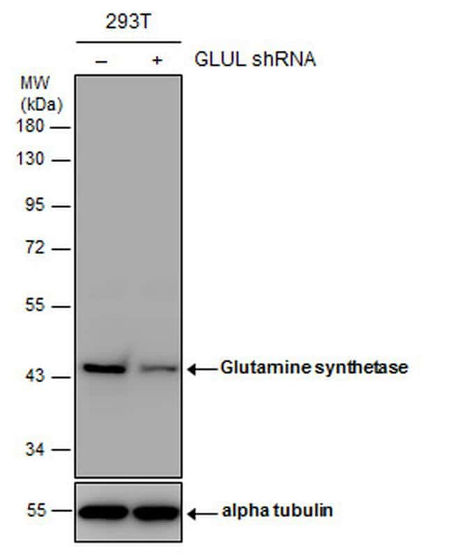 Glutamine Synthetase Antibody in Knockdown