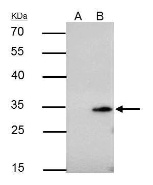 Bcl-10 Antibody in Immunoprecipitation (IP)