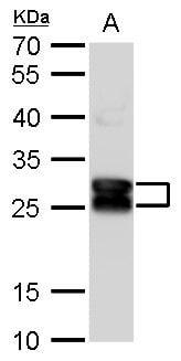 CRYBA1 Antibody in Western Blot (WB)