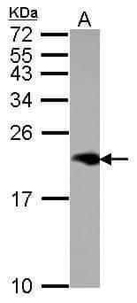 NPC2 Antibody in Western Blot (WB)