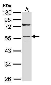 Cytokeratin 7 Antibody in Western Blot (WB)