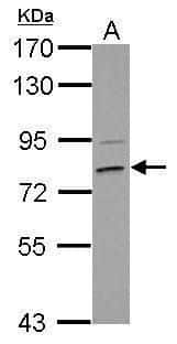 HLCS Antibody in Western Blot (WB)