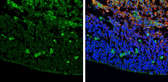 ZIC3 Antibody in Immunohistochemistry (Frozen) (IHC (F))