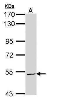 ALDH5A1 Antibody in Western Blot (WB)