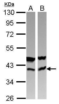 CAB39 Antibody in Western Blot (WB)