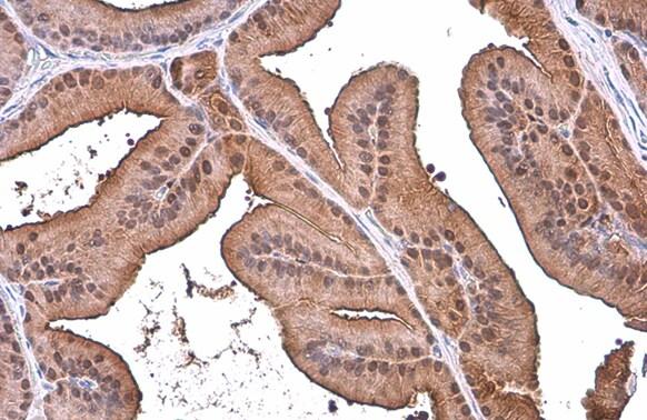 ALDH1A3 Antibody in Immunohistochemistry (Paraffin) (IHC (P))
