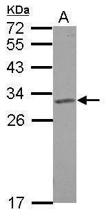 SLC25A6 Antibody in Western Blot (WB)