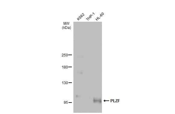 PLZF Antibody in Western Blot (WB)