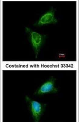 RSK1 Antibody in Immunofluorescence (IF)