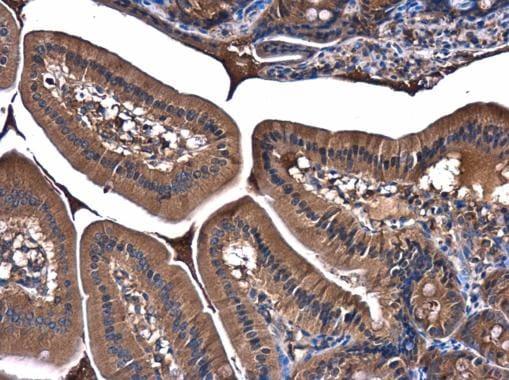 PI3K p85 alpha Antibody in Immunohistochemistry (Paraffin) (IHC (P))