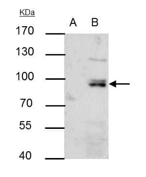 PI3K p85 alpha Antibody in Immunoprecipitation (IP)