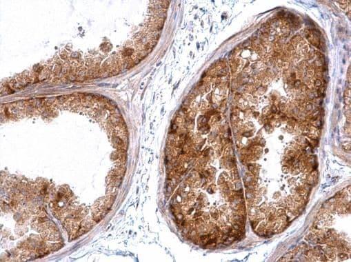 HSC70 Antibody in Immunohistochemistry (Paraffin) (IHC (P))