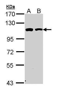 alpha Catenin Antibody in Western Blot (WB)