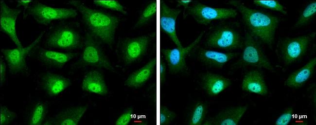 RUVBL1 Antibody in Immunocytochemistry (ICC)