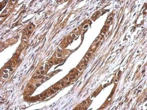 RUVBL1 Antibody in Immunohistochemistry (Paraffin) (IHC (P))