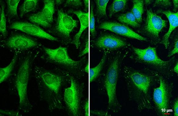 HK2 Antibody in Immunocytochemistry (ICC)