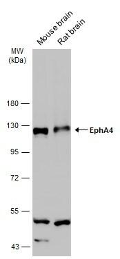 EphA4 Antibody in Western Blot (WB)
