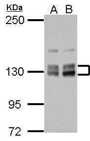PPIP5K2 Antibody in Western Blot (WB)