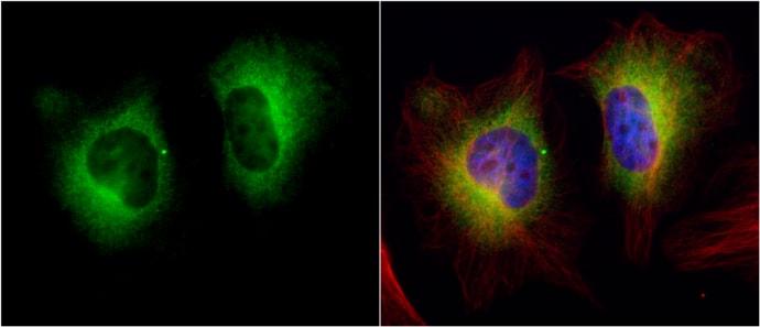 TGM2 Antibody in Immunocytochemistry (ICC)