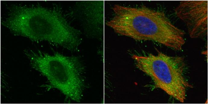Ezrin Antibody in Immunocytochemistry (ICC/IF)