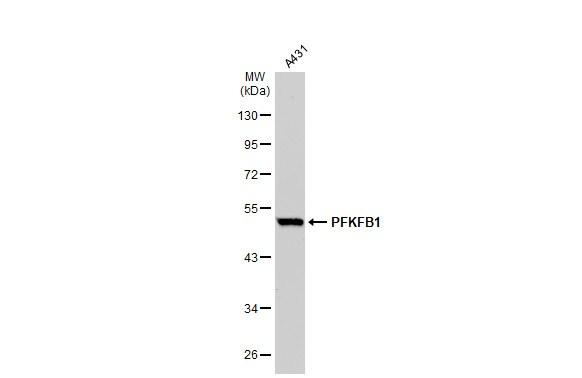 PFKFB1 Antibody in Western Blot (WB)