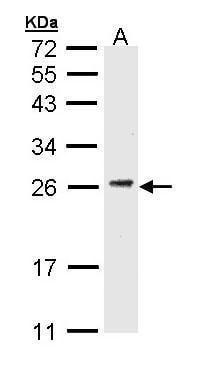 CD3g Antibody in Western Blot (WB)