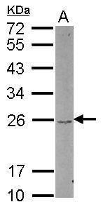 DUSP22 Antibody in Western Blot (WB)