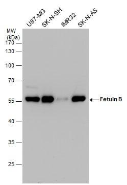 Fetuin B Antibody in Western Blot (WB)