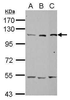 alanyl-tRNA Synthetase Antibody in Western Blot (WB)