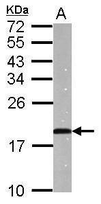 ANP Antibody in Western Blot (WB)