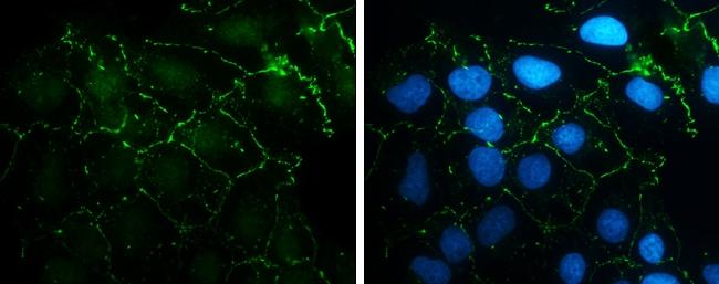 N-cadherin Antibody in Immunocytochemistry (ICC)