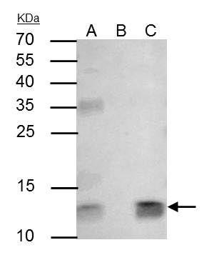 beta-2 Microglobulin Antibody in Immunoprecipitation (IP)