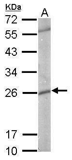GSTP1 Antibody in Western Blot (WB)