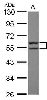 Cytokeratin 8 Antibody in Western Blot (WB)