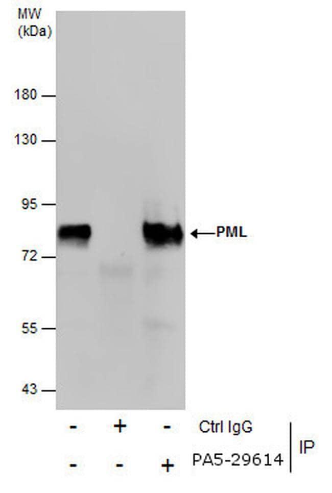 PML Antibody in Immunoprecipitation (IP)