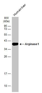 Arginase 1 Antibody in Western Blot (WB)