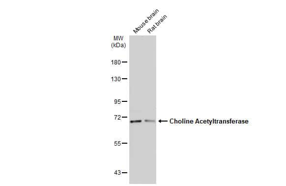ChAT Antibody in Western Blot (WB)