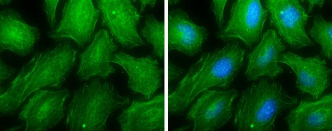 MYH9 Antibody in Immunocytochemistry (ICC)