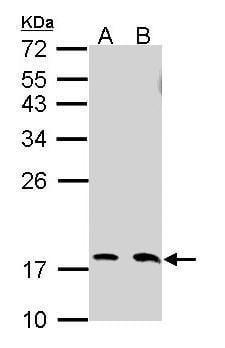 UBC13 Antibody in Western Blot (WB)