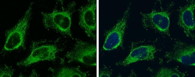 Vinculin Antibody in Immunocytochemistry (ICC)