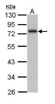 Calpain 3 Antibody in Western Blot (WB)