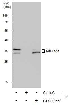 SULT1A1 Antibody in Immunoprecipitation (IP)