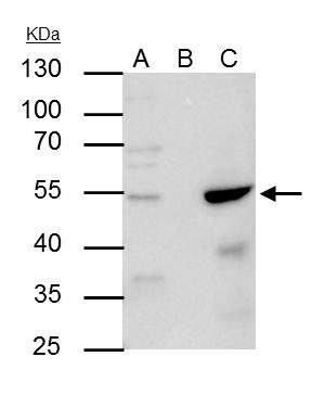 AP2 alpha Antibody in Immunoprecipitation (IP)