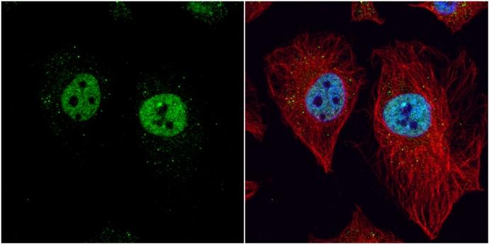 LXR beta Antibody in Immunocytochemistry (ICC)