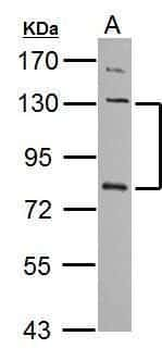 P-cadherin Antibody in Western Blot (WB)