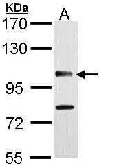 CYLD Antibody in Western Blot (WB)