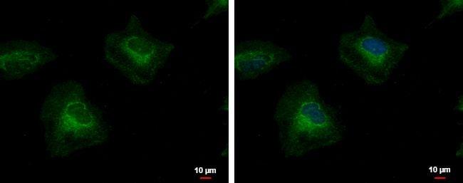 PTK7 Antibody in Immunofluorescence (IF)