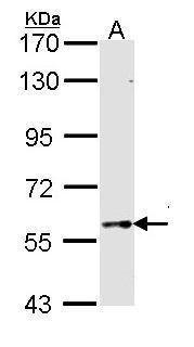 TBX5 Antibody in Western Blot (WB)